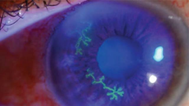 герпетическое поражение глаз