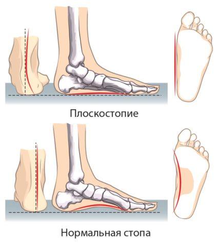 Плоскостопие и нормальная стопа