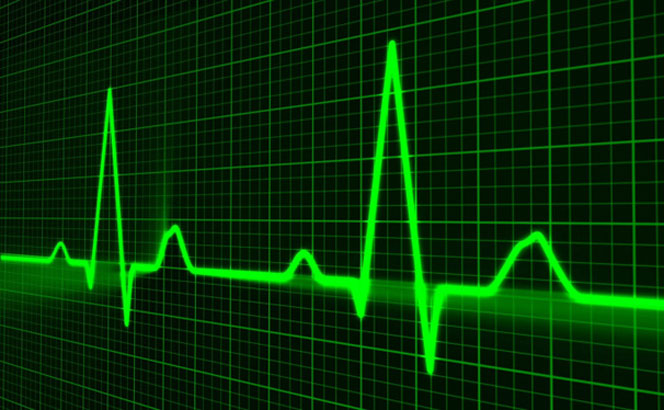 Что лучше УЗИ сердца или ЭКГ