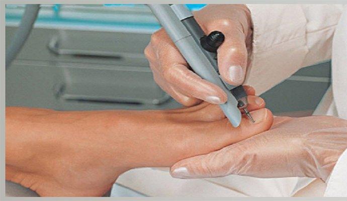 Виды анализов для выявления грибка ногтей на ногах