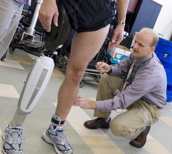 Виды и техника проведения ампутации конечности