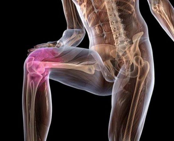 Первая помощь при вывихе коленного сустава