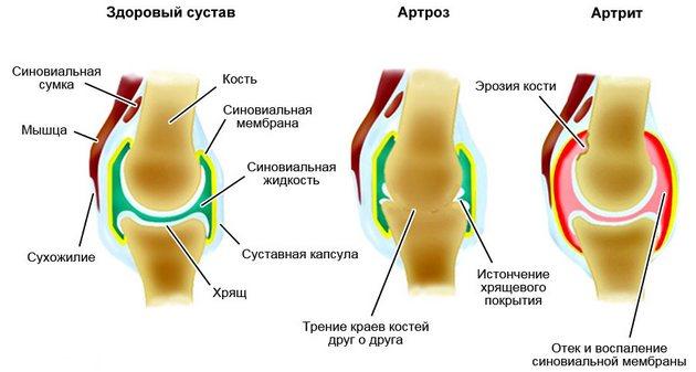 Артроз и артрит суставов