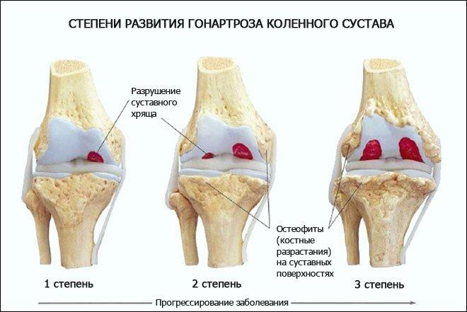 Степени развития гонартроза коленного сустава